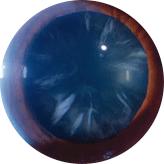 Cataracts-2