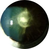 Cataracts-3